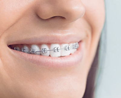 Braces & Retainers Beaufort, SC | Services | My Affordable